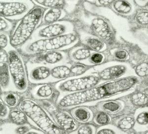 R. leguminosum (P.S. Poole)
